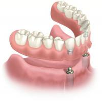 Implant Retained Denture at the Smiles Centre Swindon Dental