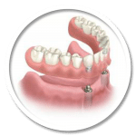 REMOVEABLE DENTURE IMPLANT
