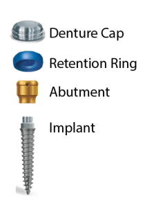 Dental Implant Sections for Dentures
