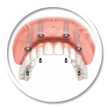 FIXED ARCH IMPLANT