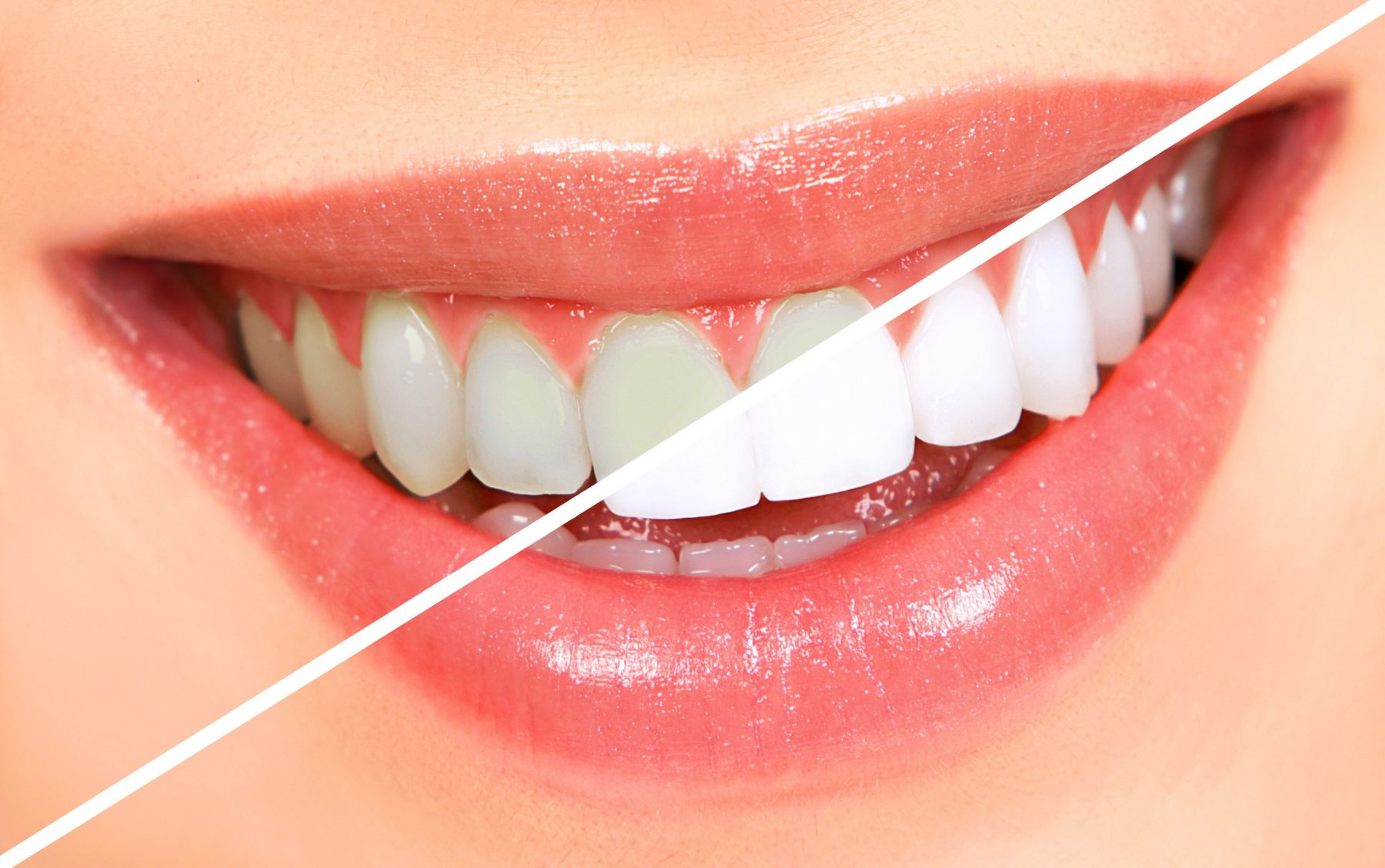 How Long Does Teeth Whitening Take?