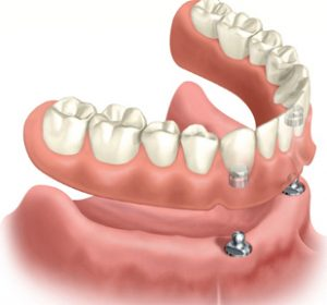 full lower denture with 2 implants