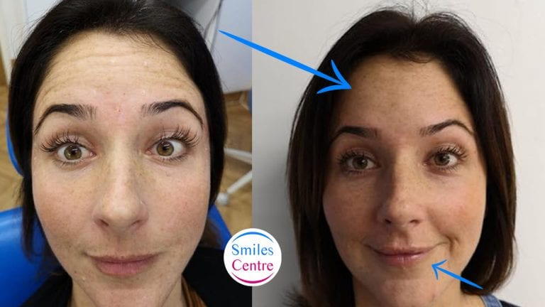 botox treatments swindon dentist
