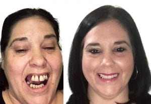 dentures or implants