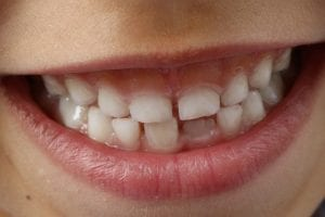 How to Teach Good Dental Habits to Your Children