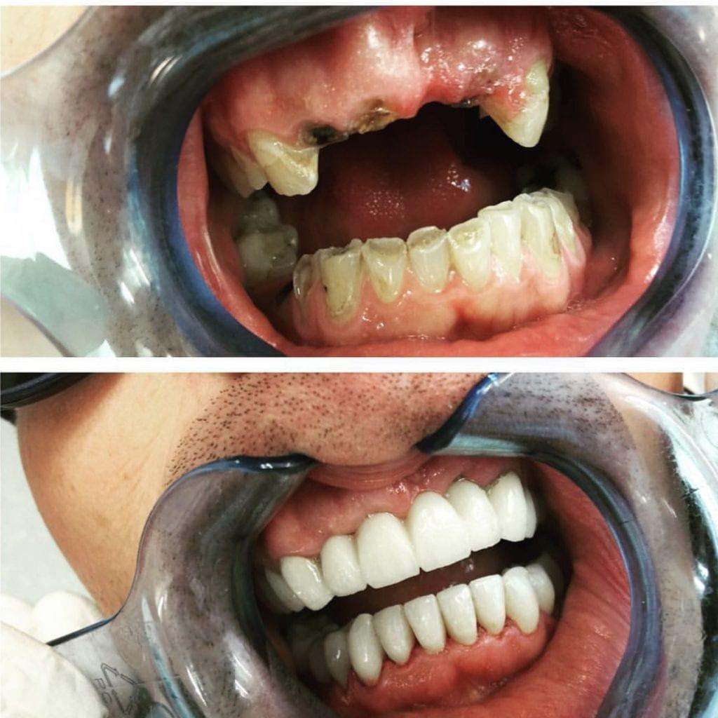 dental work richard marques
