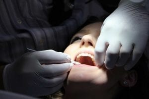 Top Things To Consider Before Choosing A Dentist