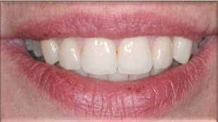 Cosmetic Gum Sculpting After