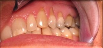 Periodontal Surgery Before