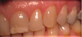 Periodontal Surgery After