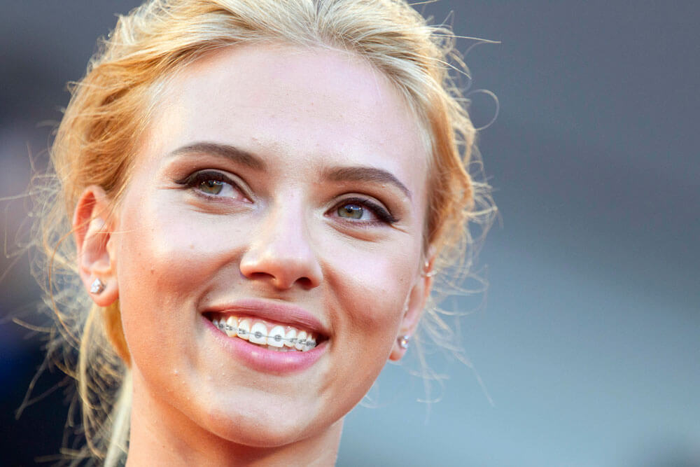Scarlett Johansson  Celebrities Smile