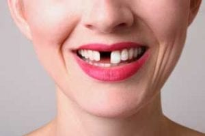 is a private dentist expensive?