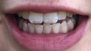 before ICON dental treatment