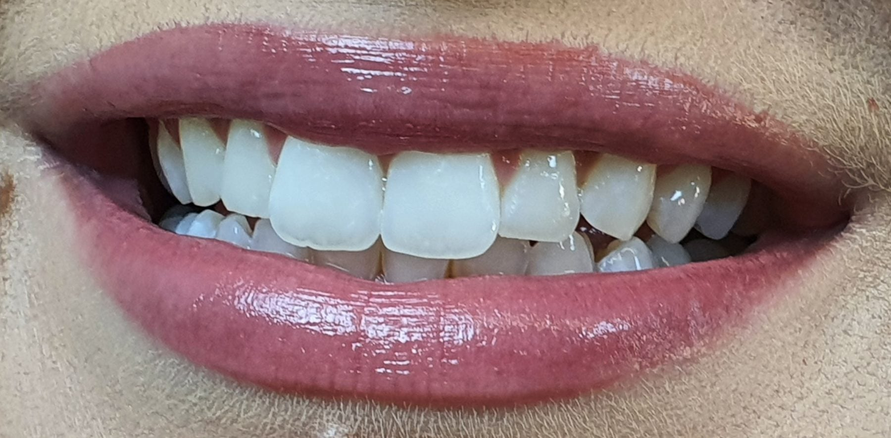 After ICON Dental Treatment