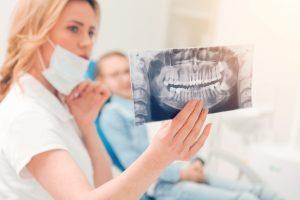 dentist checking wisdom teeth